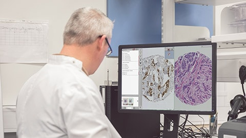 Philips speeds up research and biomarker discovery with major upgrade to the Xplore image and data management platform