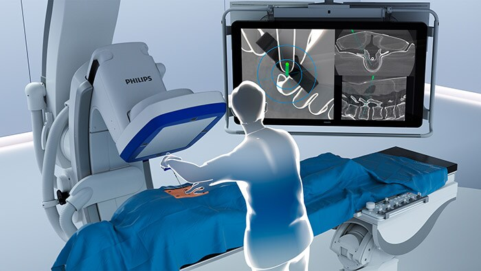 Philips introduces ClarifEye Augmented Reality Surgical Navigation to advance minimally-invasive spine procedures